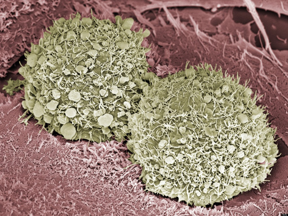 Scanning electron microscopy of pancreatic cancer cells