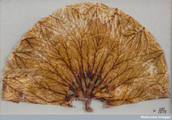 L0057749 Part of a human stomach dissected by Edward Jenner, England,